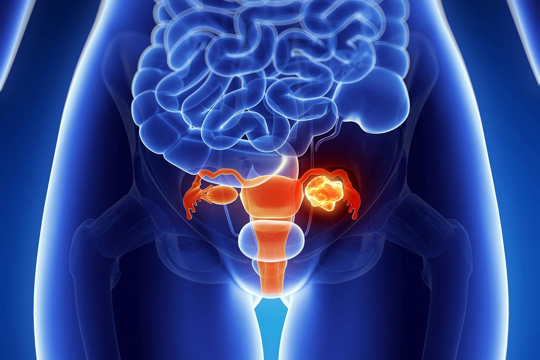 Что болит у женщин в животе при менструации