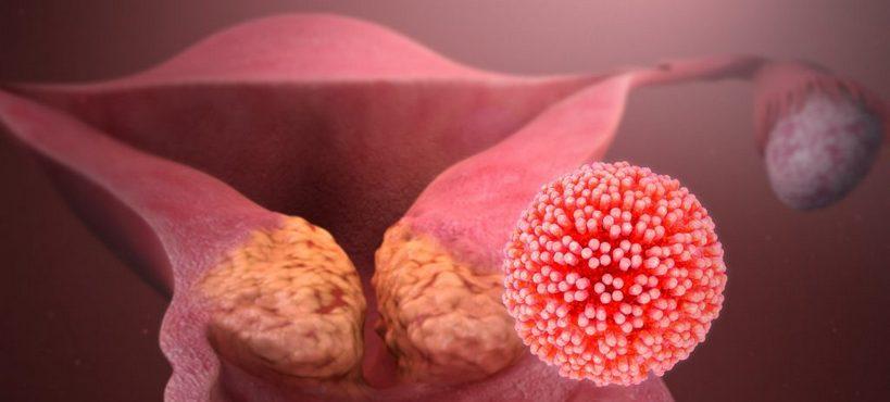 Рак матки: симптомы и первые признаки у женщин, опухоль матки симптомы, признаки рака матки на ранних стадиях
