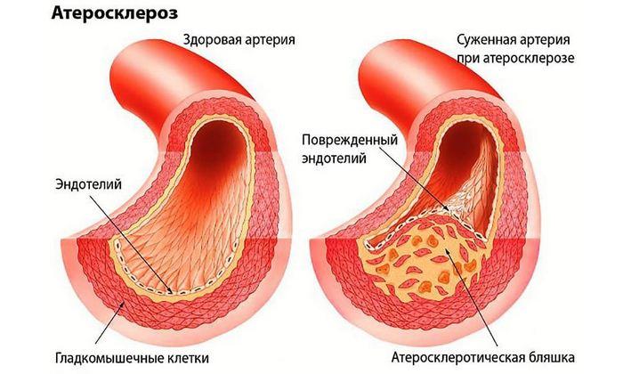 Норма холестерина в крови у женщин после 50 лет после инфаркта