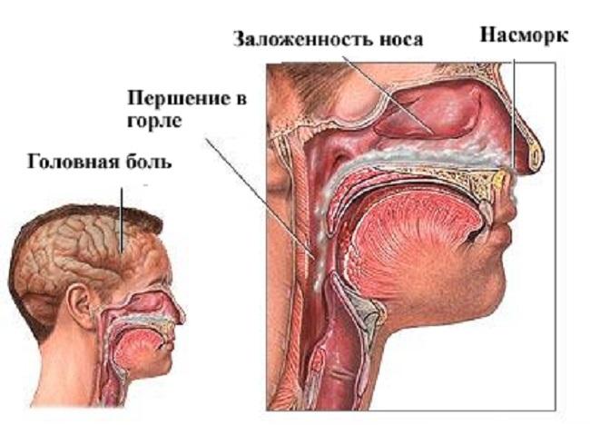 орви запах изо рта