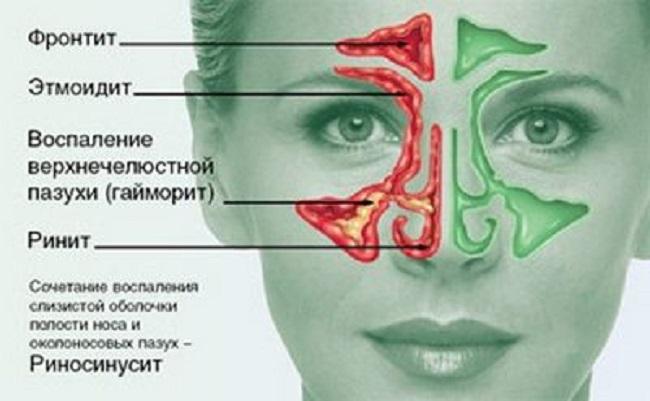Безинтерфероновое лечение гепатита с цена