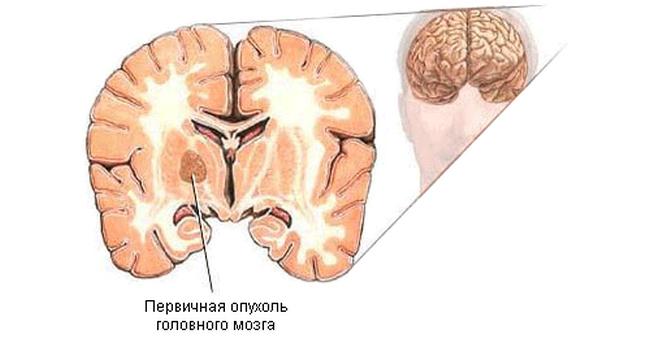 Мигрень головная боль какие лекарства