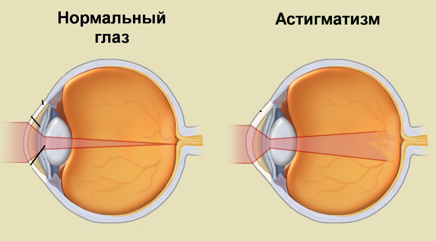 Набор для измерения внутриглазного давления грузики