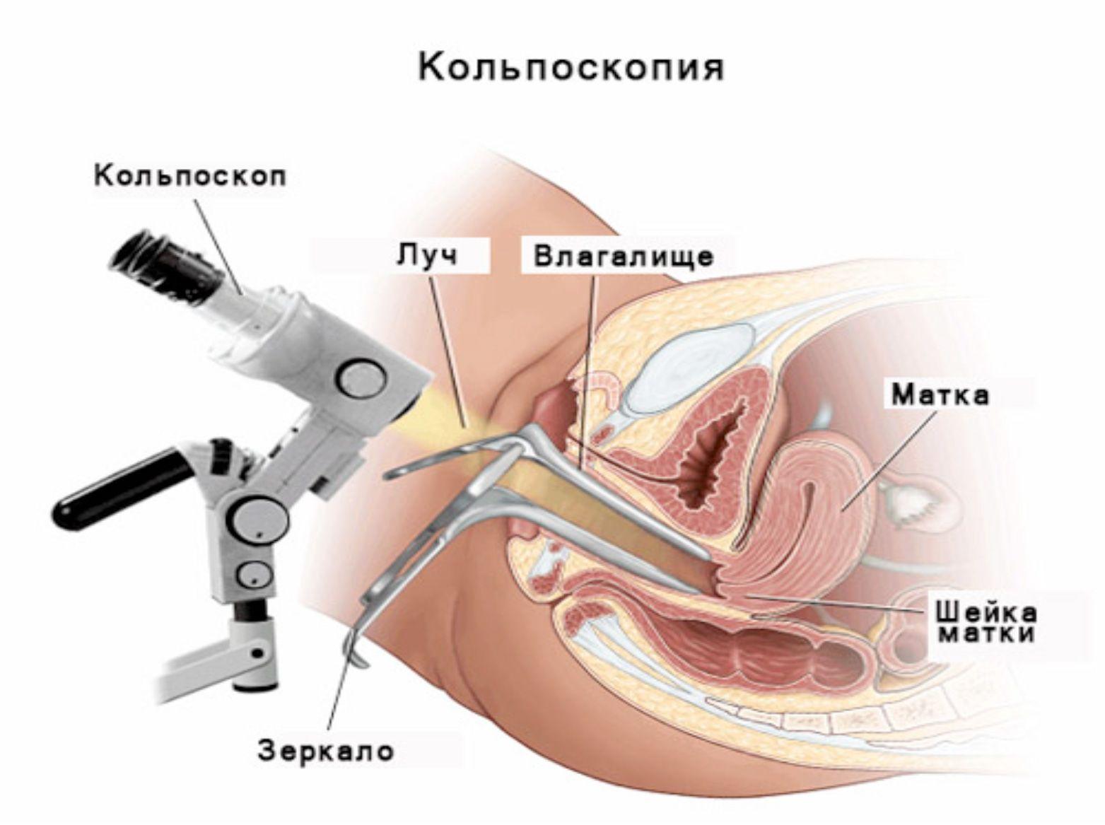 Аденомиоз матки: лечение народными средствами и препаратами, отзывы