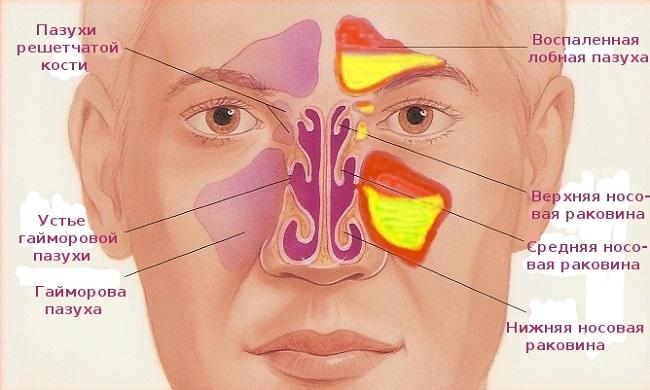 того, что как расположены носовые пазухи рассмотреть