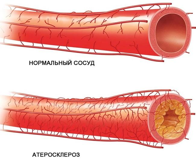 Атеросклероз сосудов головного мозга: симптомы, диагностика, лечение