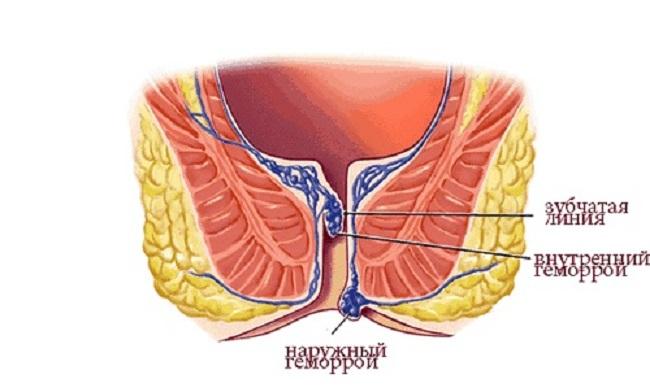 Наружный внешний геморрой симптомы женщины мужчины