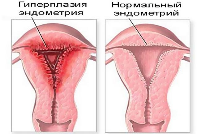Уколы для слизистой матки
