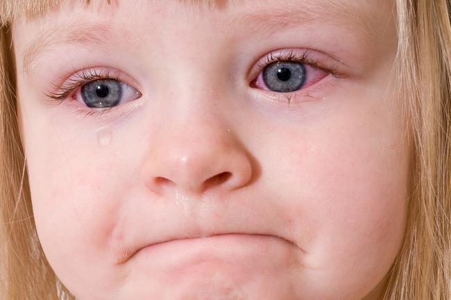 Почему у грудного ребенка гноится глаз