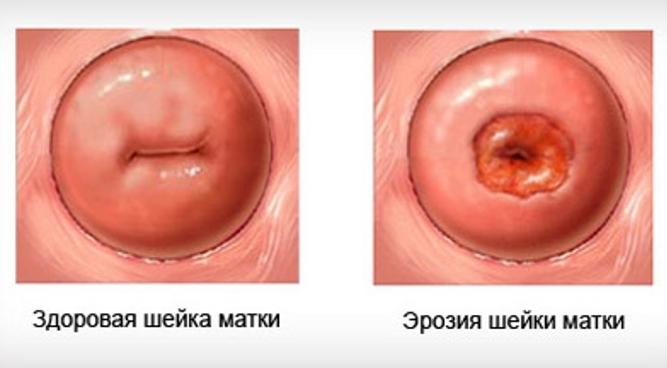 Эффективные препараты при лечении позвоночной грыже