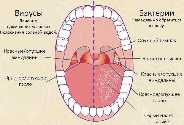Фарингит — симптомы и лечение у взрослых, СпросиВрача
