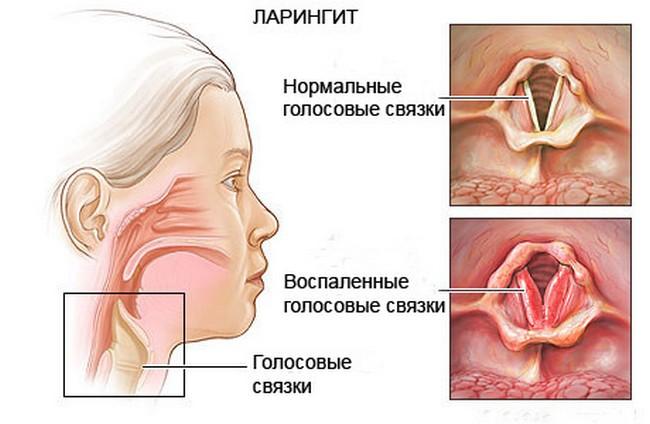 Симптомы ларингита у взрослого без температуры thumbnail