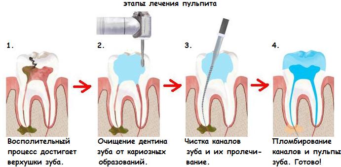 Как лечат молочные зубы у детей с удалением нерва