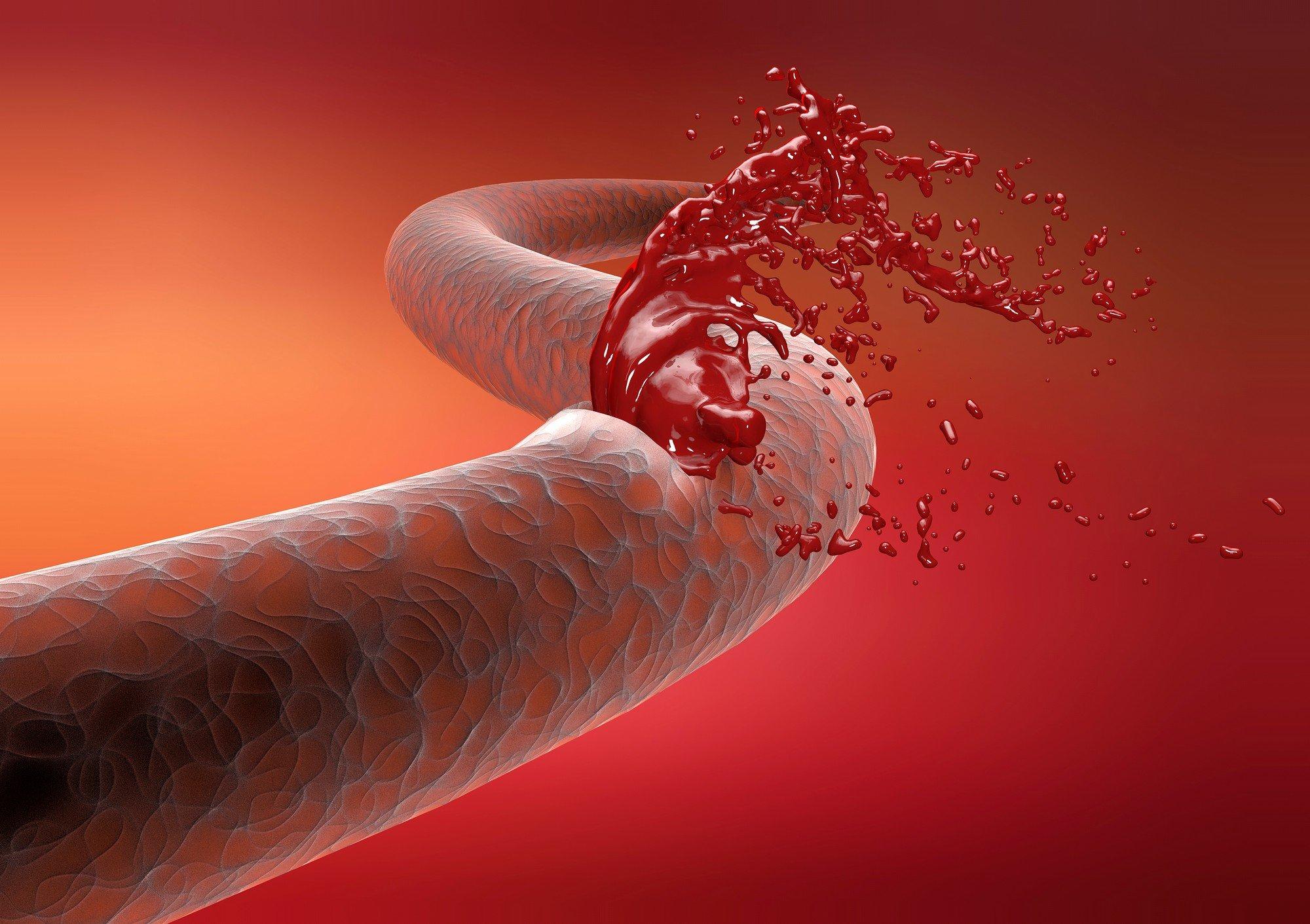 Тромбоцитопения: что это такое? Причины возникновения у взрослых, диагностика и последствия тромбоцитопении