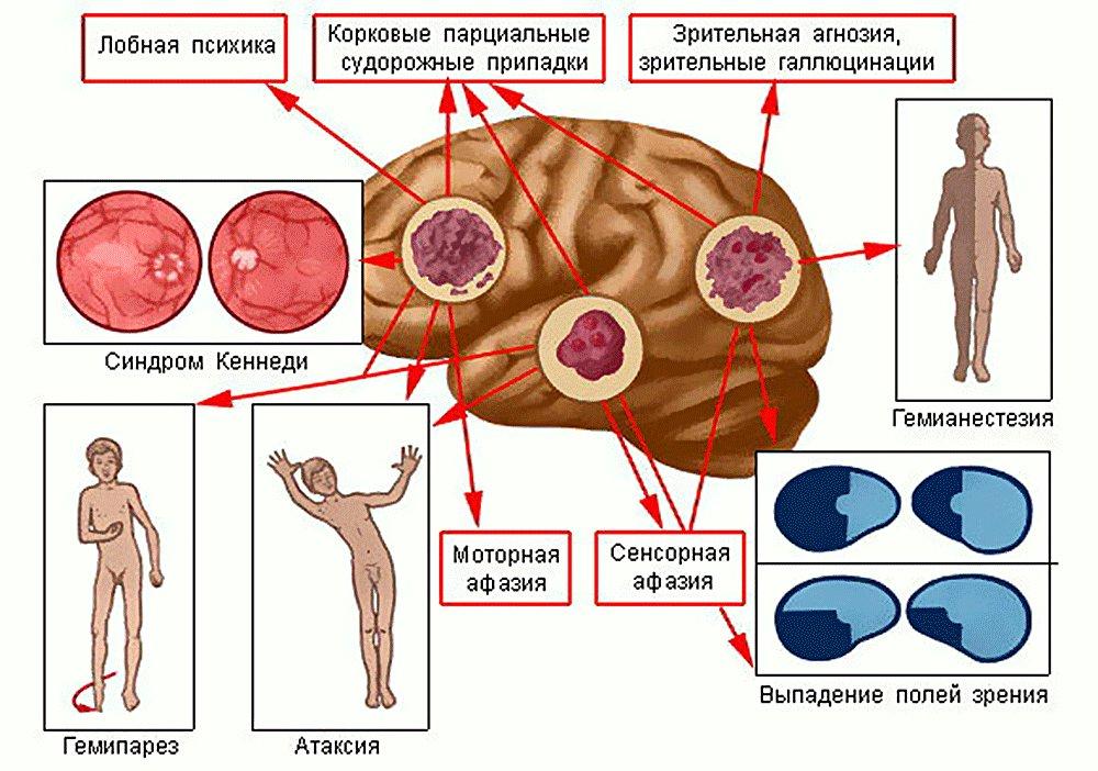 Рак головного мозга - симптомы и признаки на ранних стадиях