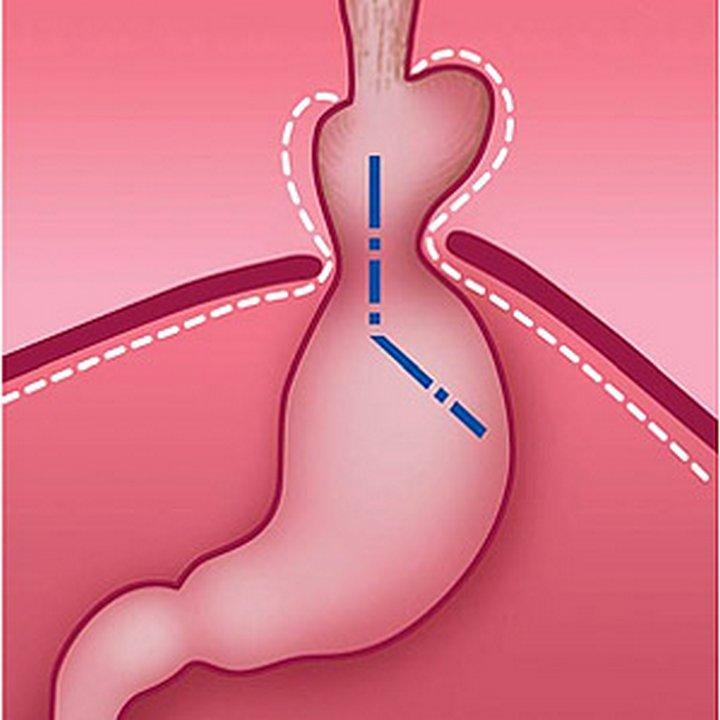 Болит грудная клетка посередине причины у мужчин опускаю голову