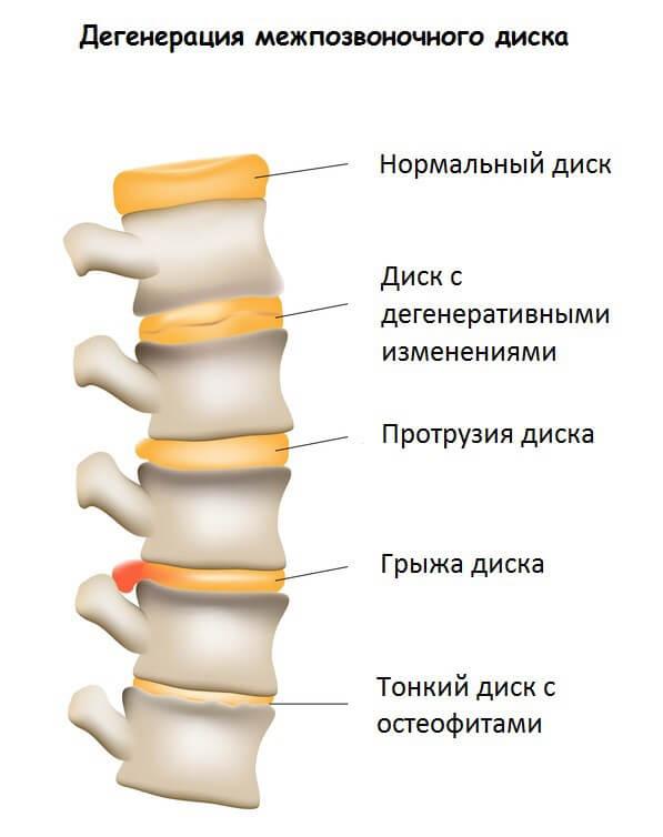 Боль в правом боку ниже талии спереди