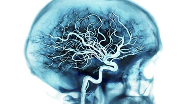 chistka sosudov golovnogo mozga 2 - Народные средства для чистки сосудов в организме человека