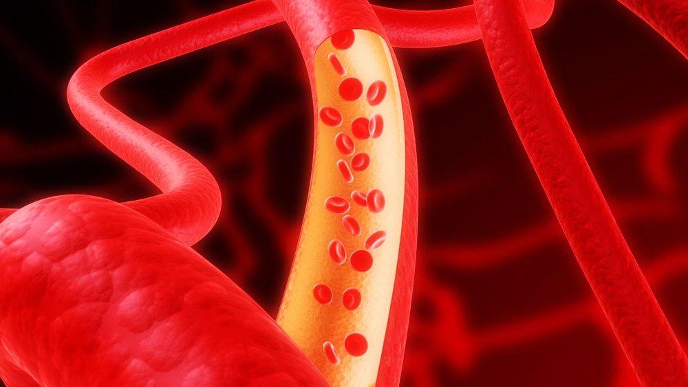 chistka sosudov golovnogo mozga - Народные средства для чистки сосудов в организме человека